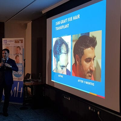 hair transplant seminar in london