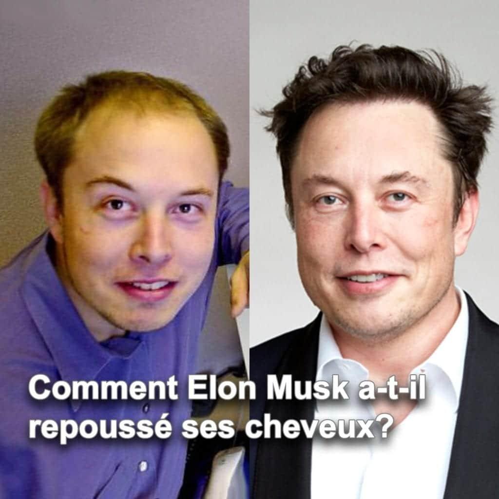 Est-ce qu'Elon Musk a vraiment eu une greffe de cheveux