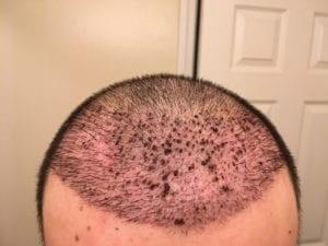 Redness after hair transplant