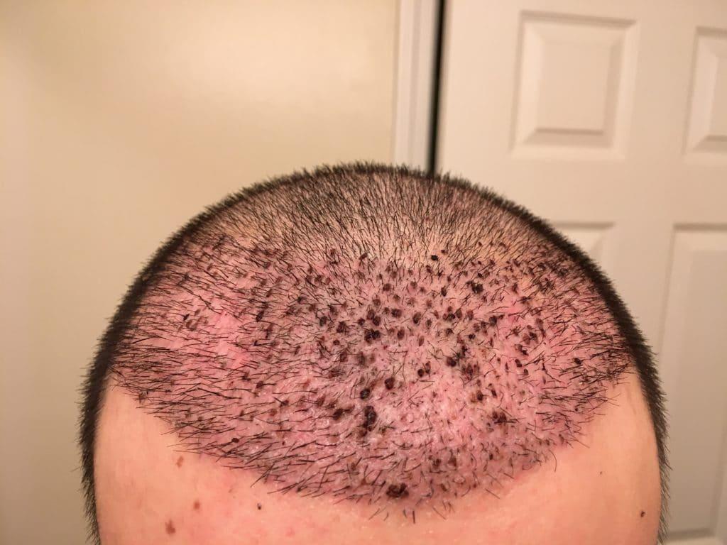 Tout-sur-les-rougeurs-après-votre-greffe-de-cheveux