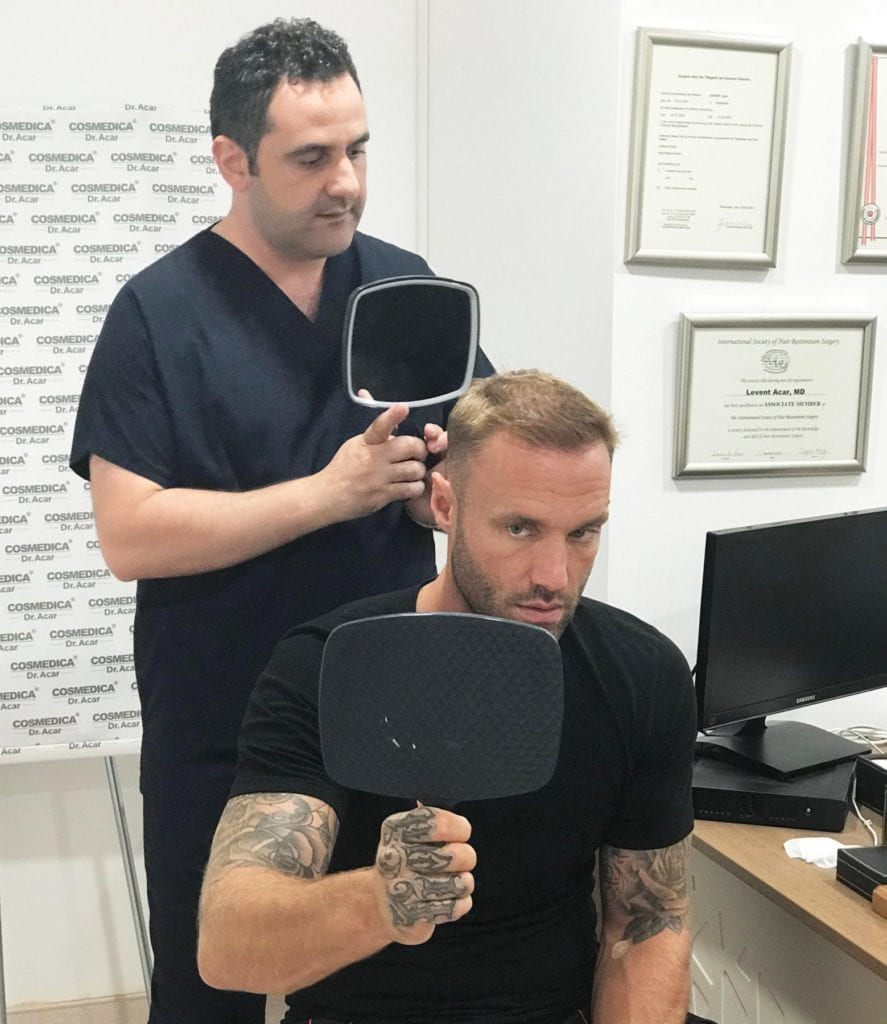 Dr. Levent Acar showing Calum Best the hair transplant turkey result