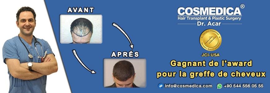 10- Après la Greffe de Cheveux