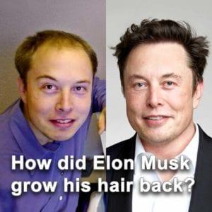 how did elon musk grow his hair back