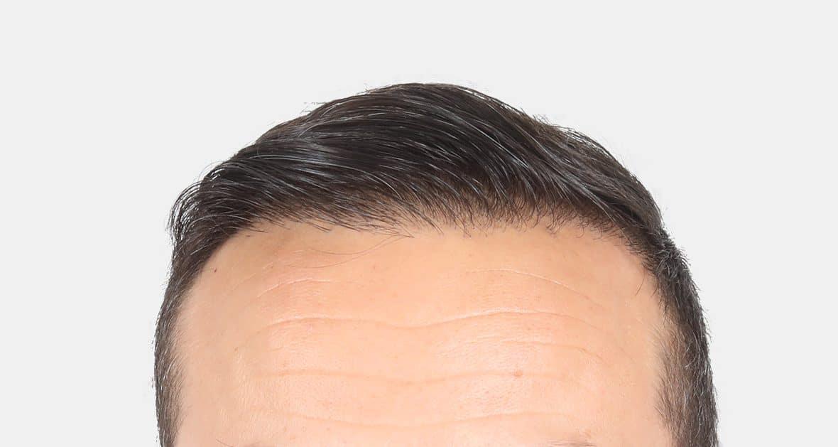 after results hair transplant 4500 grafts hairline