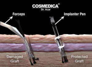hair transplants cost