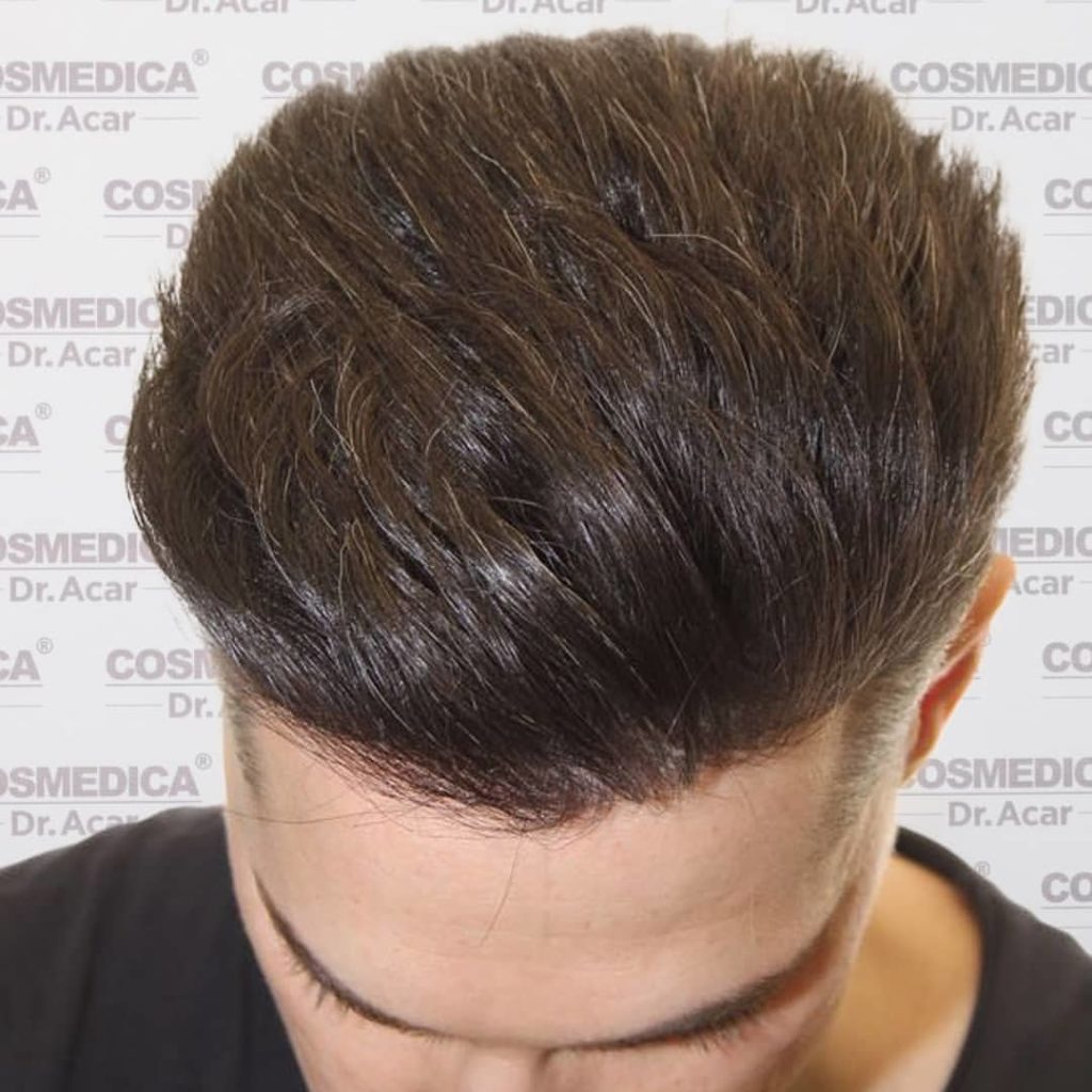 A young man with excellent hair transplant results
