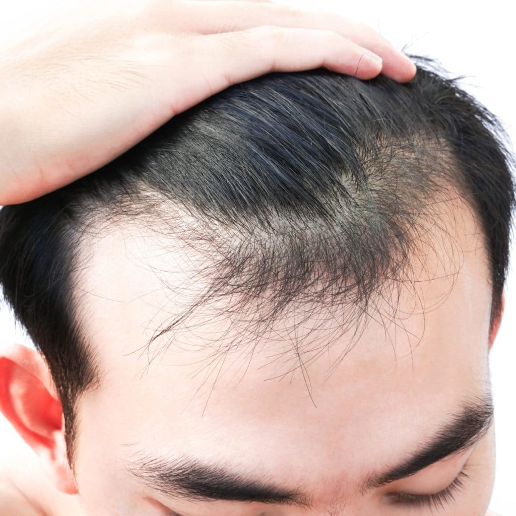 Stressed man with thinning hair