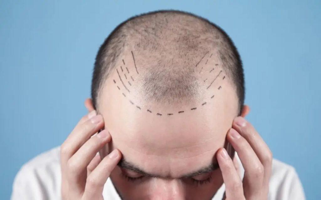 douleur liée à la greffe de cheveux