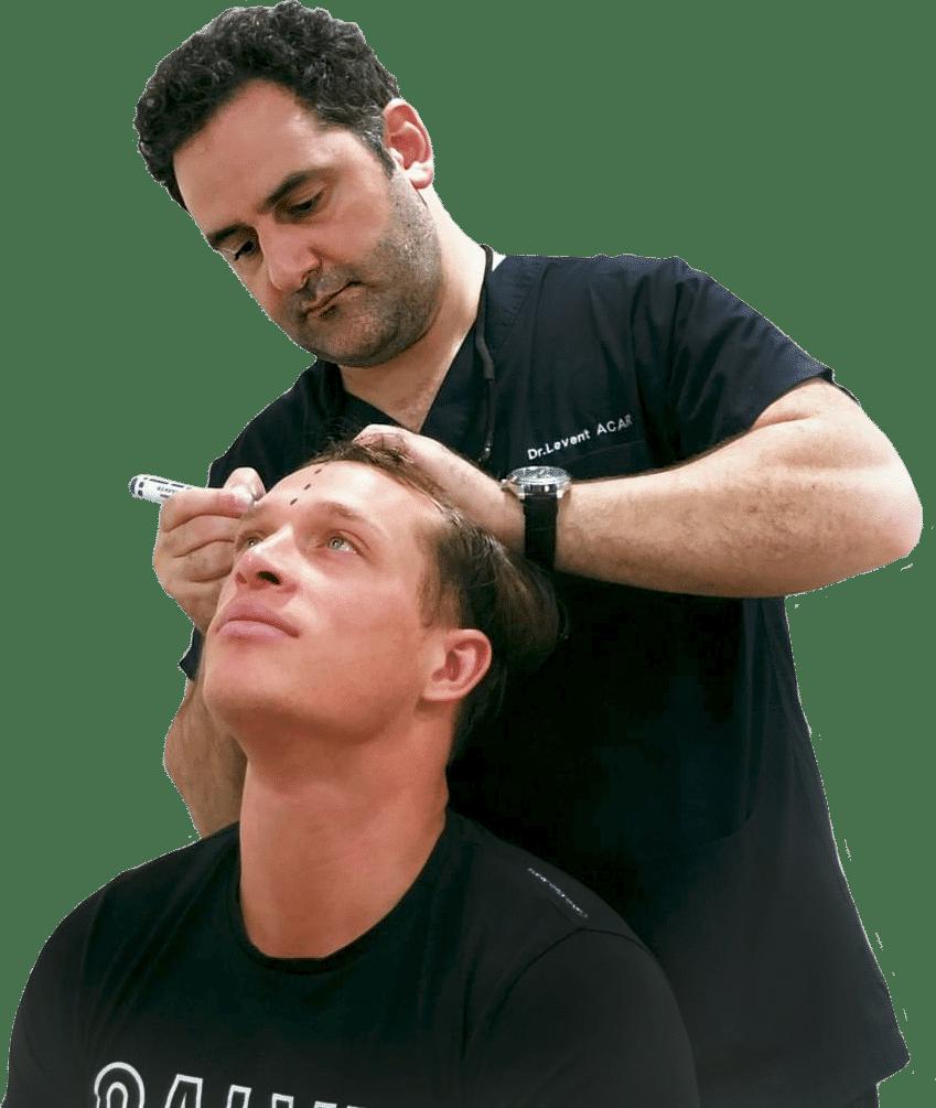 Пересадка волос в Турции доктор Левент Аджар-рисует линию волос