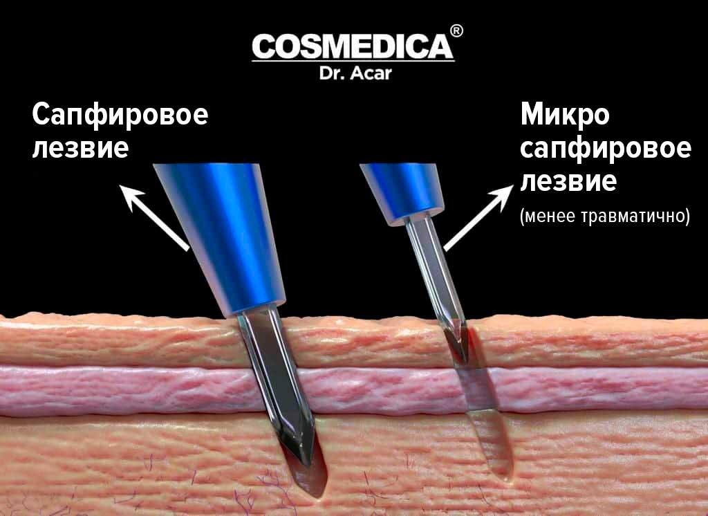 Пересадка-волос-в-Турции-сапфировое-лезвие-Micro-Saphir