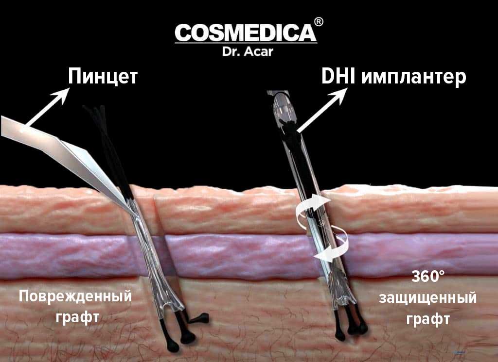 Сравнение-пинцета-и-dhi-имплантера