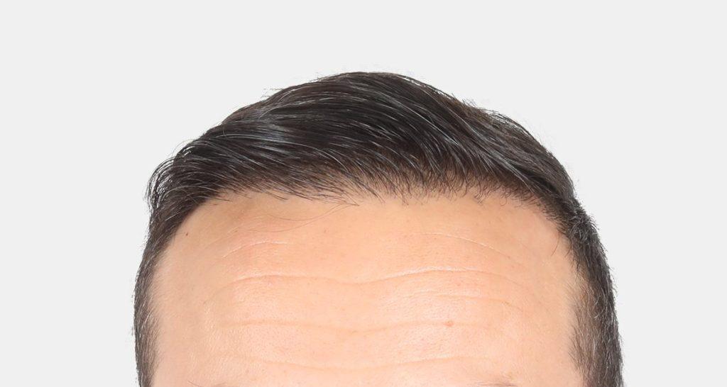 Пересадка волос в Турции фото до после 4500-графтов