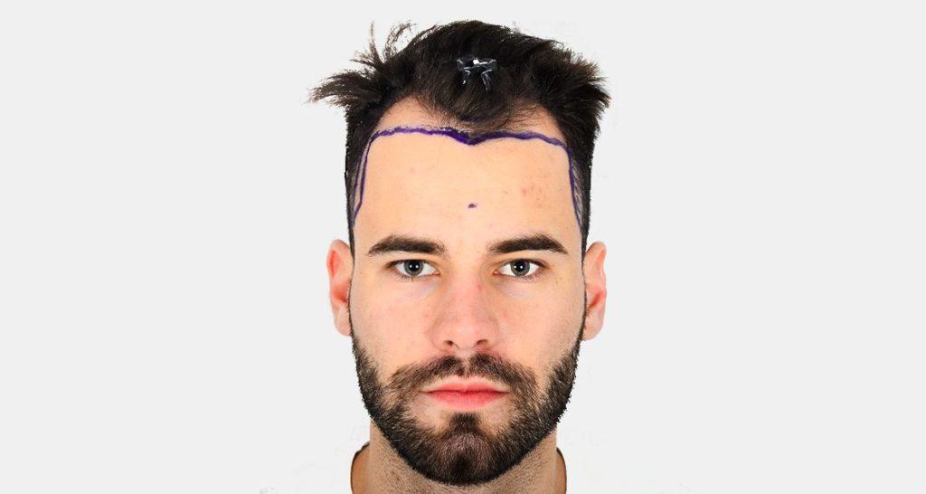 Пересадка волос в Турции фото до после 4760-графтов Cosmedica Clinic Dr Levent Acar