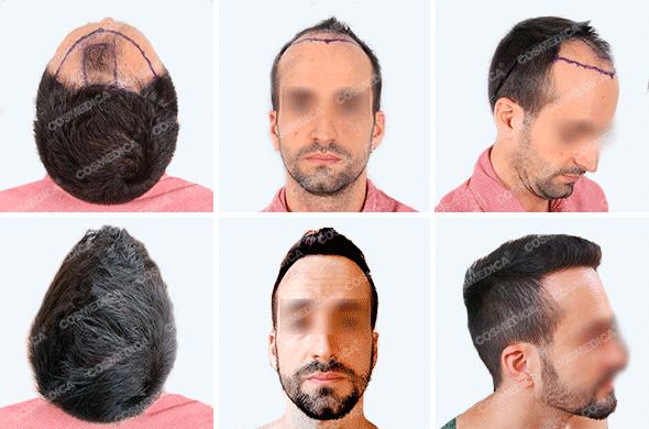 Мужчина с пересаженными волосами фото до и после