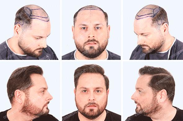 Пересадка волос фото до и после