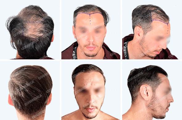 Пациент фото до и после пересадки волос