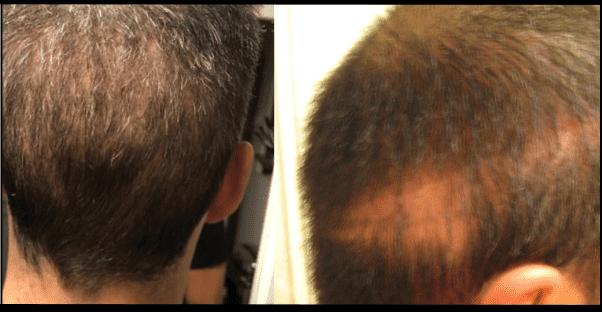 Greffe de cheveux - zone donneuse