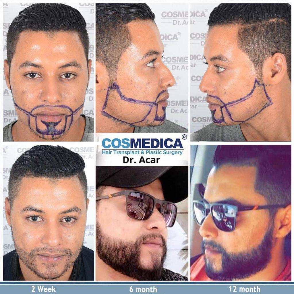 Rezultat przeszczepu włosów z brody po 12 miesiącach