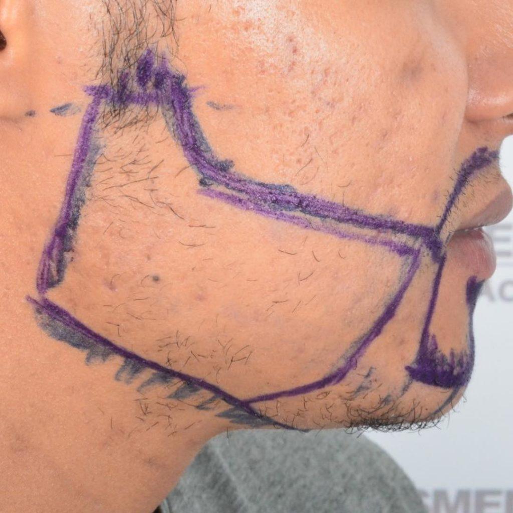 Przeszczep brody, rysowanie linii, przed