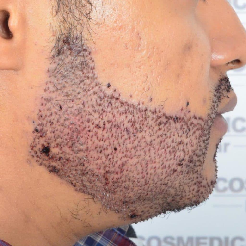 Przeszczep brody przeszczepione