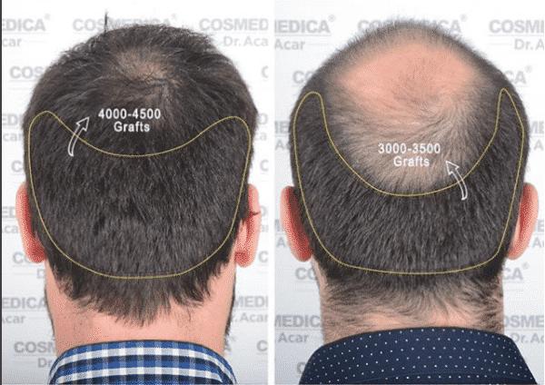 meilleures cliniques de greffe de cheveux Turquie