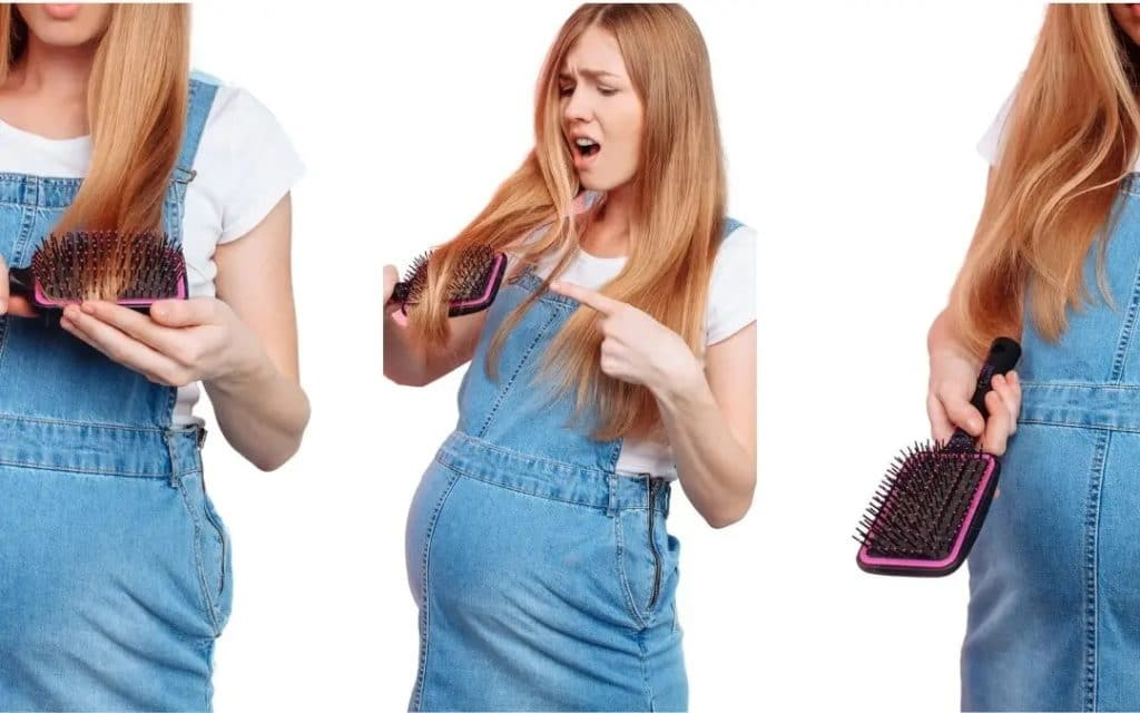 hair loss pregnancy