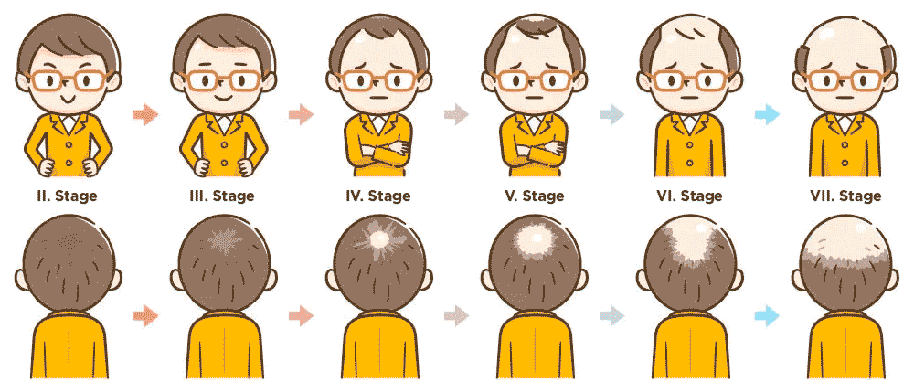 hair loss can be divided in 6 stages