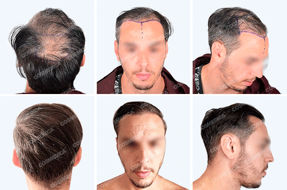 Пациент фото до и после