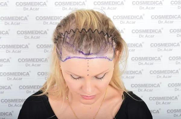 Женщина до пересадки волос
