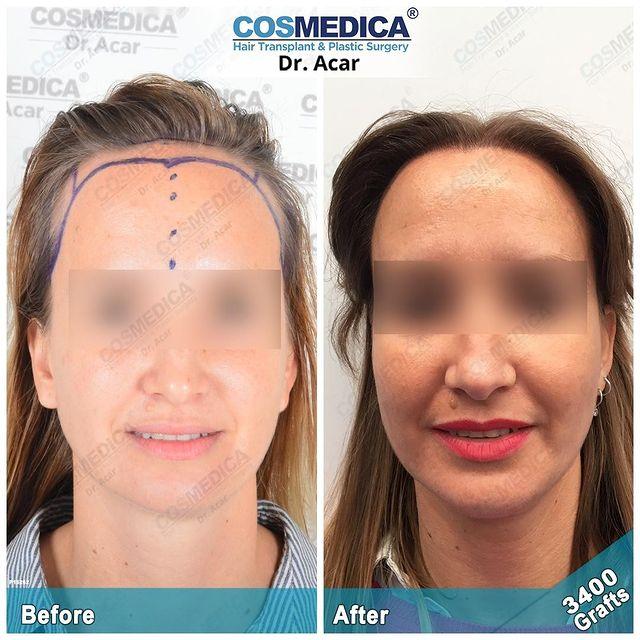 Женщина пересадка волос фото до и после
