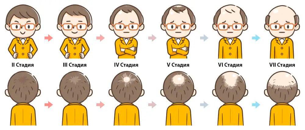 Иллюстрация стадий выпадения