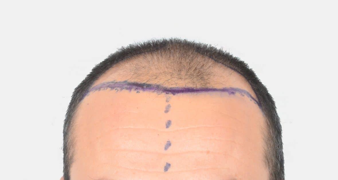 sac ekimi öncesi sonrası fotoğrafları 3000 graft saç kökü