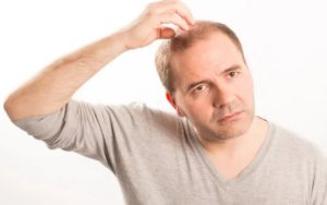 hair transplant another person's hair
