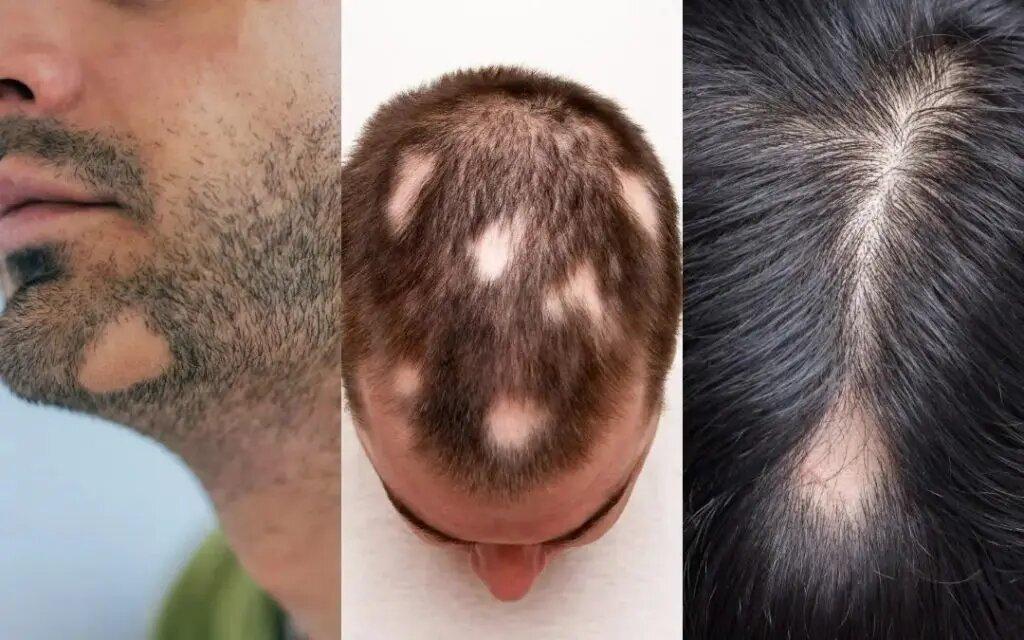 Мужчина с поврежденными волосами