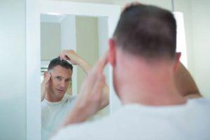 scalp fungus hair loss