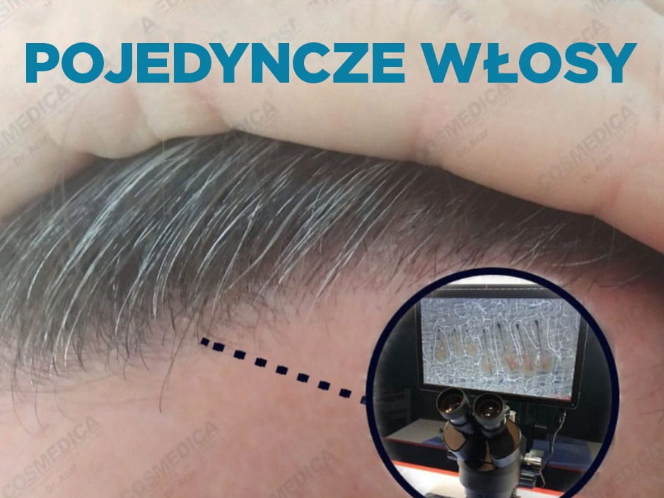 Naturalnie wyglądające przeszczepy włosów z pojedynczych przeszczepów
