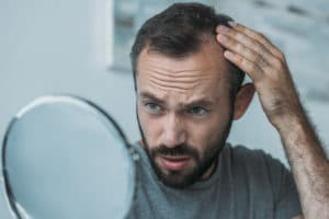 How to fix bad hair transplant