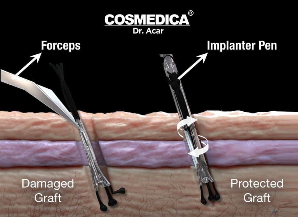 haartransplantatie-turkije-dhi-saffier-implantatie