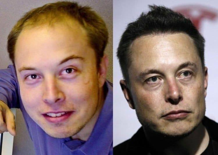 Илон Маск до и после пересадки волос