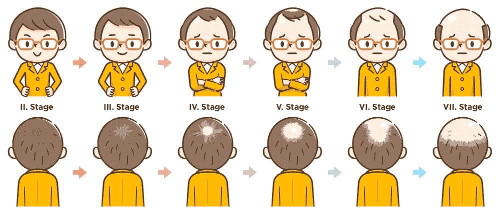 wypadanie włosów można podzielić na 6 etapów